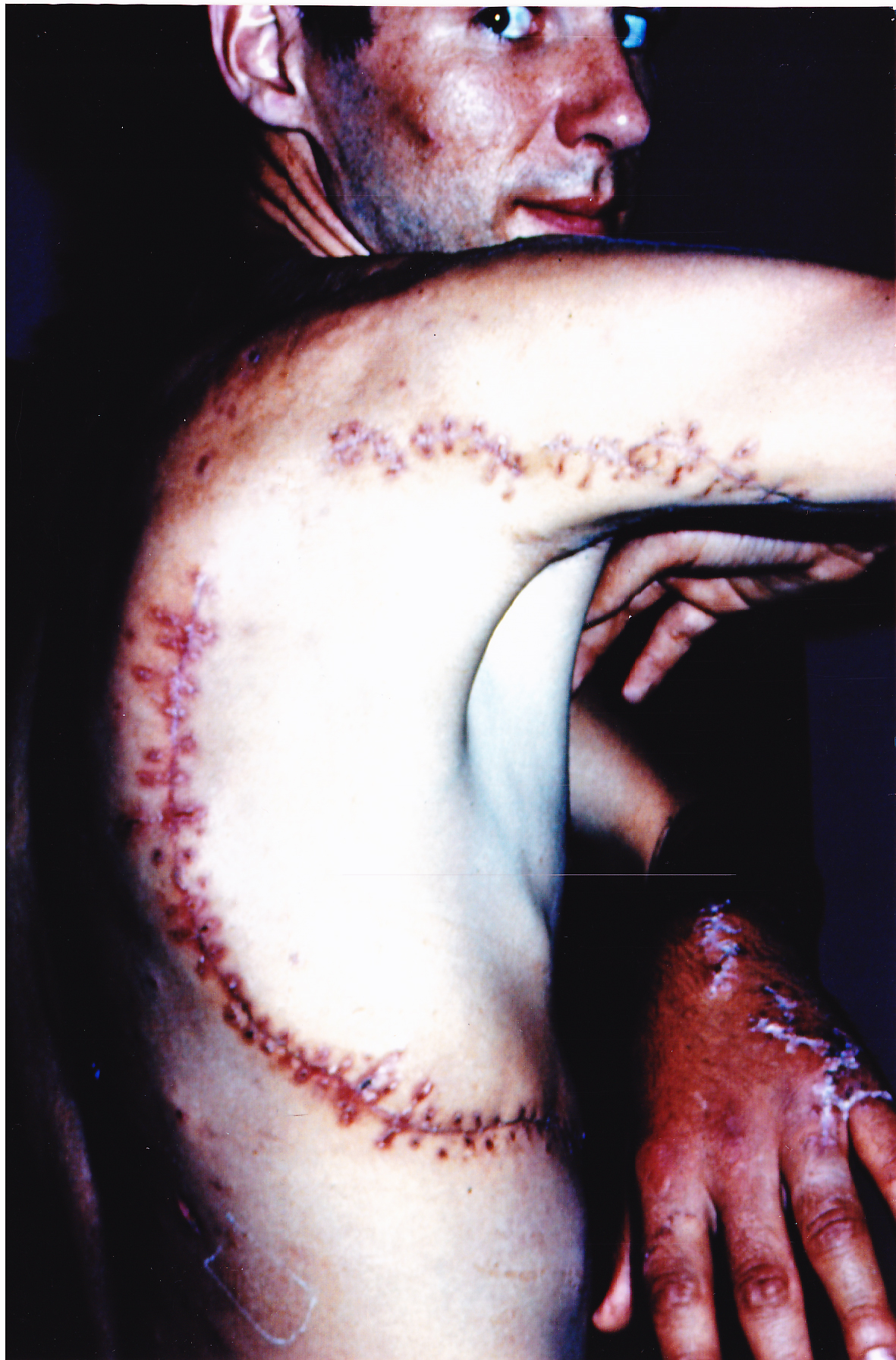 Rodney Fox's closed wound - 50 years since he was attacked by a shark in South Australia.